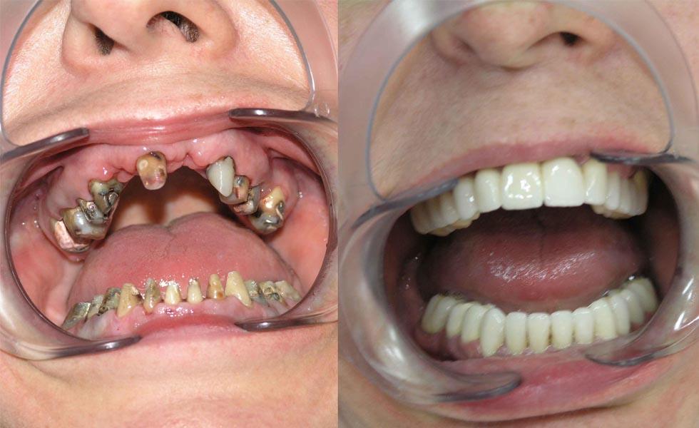 цена зубных виниров